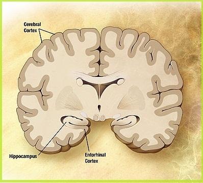 болезнь Альцгеймера-здоровый головной мозг человека