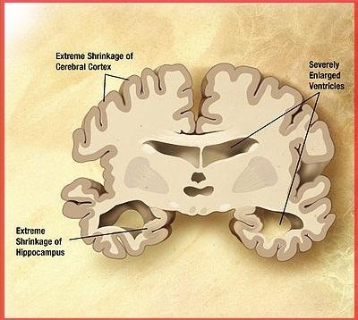 болезнь Альцгеймера  - мозг больного человека