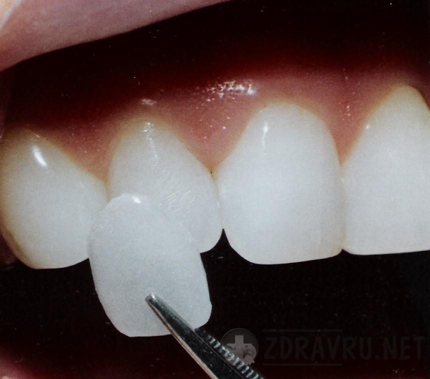 Какие бывают фиксированные зубные протезы - виниры