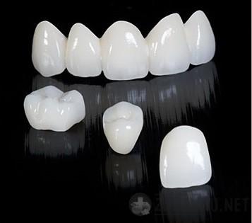 фиксированные зубные протезы - коронки