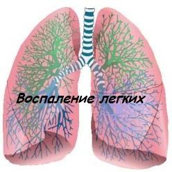 воспаление легких симптомы, причины, лечение