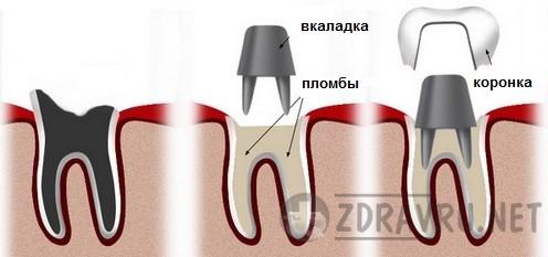 Какие бывают фиксированные зубные протезы - вкладки