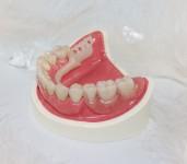 Съемные зубные протезы, современные виды и особенности