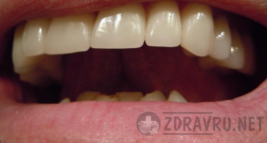зубной камень у человека