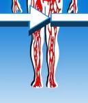 Тромбофлебит: симптомы, причины, лечение