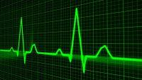 Артериальный пульс: свойства, методы и результаты обследований